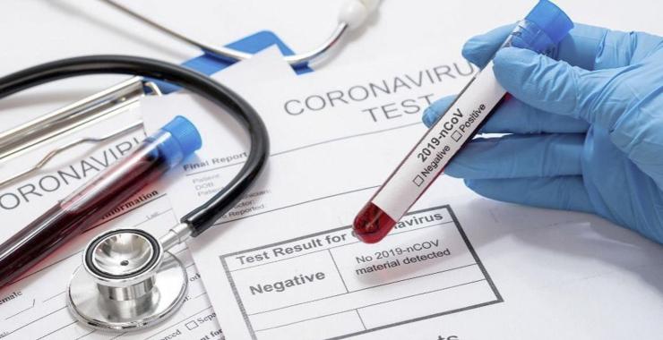 Confirmaron 406 muertes y 11.712 nuevos contagios en las últimas 24 horas