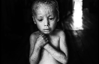 Muestra fotográfica sobre el daño de los agrotóxicos en la Casa de las Culturas