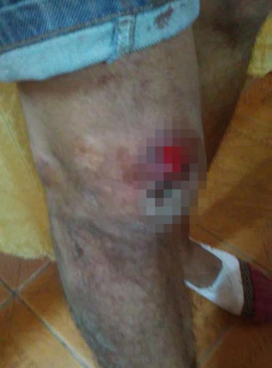 lesion.jpg