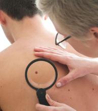 Aumentan los casos de cáncer de piel en la región